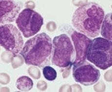 Leucemia Mielóide Aguda (LMA)
