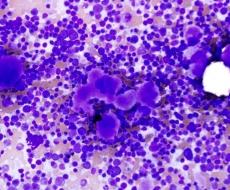 Púrpura Trombocitopênica Idiopática (PTI)